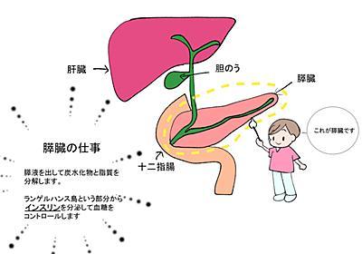 看護師の勉強ノート☆膵臓がんについて - ナースの毎日は予想のななめ上をいく。