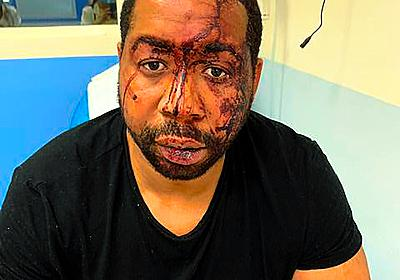 パリで警官が無抵抗の黒人を殴打 動画拡散で政府に批判:朝日新聞デジタル