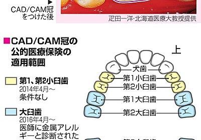 歯のかぶせ物、白が人気です 新技術+保険適用で身近に:朝日新聞デジタル