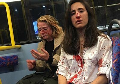 ロンドンでレズビアンカップルが暴行被害 キス見せるのを拒み 写真2枚 国際ニュース:AFPBB News