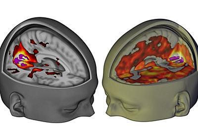 LSDは脳を「子どものころの状態」にする:研究結果|WIRED.jp