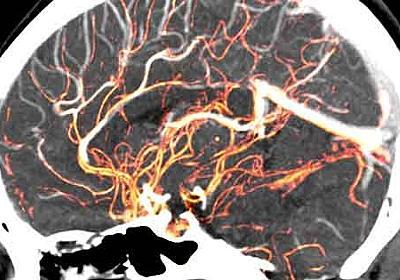 腸内細菌ならぬ「脳内細菌」が発見される! 研究者も唖然、ヒトの脳は無菌状態ではなかった!!
