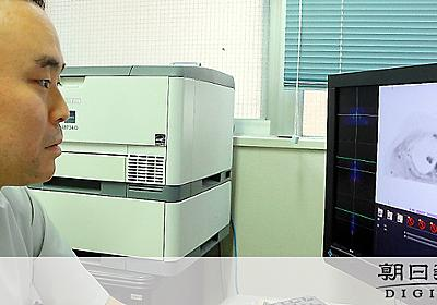 MRIでがん検診 「被ばくしない」と人気、受診9倍に:朝日新聞デジタル