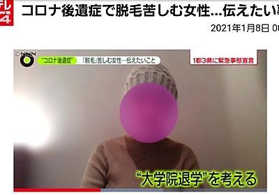 痛いニュース(ノ∀`) : コロナ後遺症で髪が抜け落ちた女子大生「大学院退学を考えてる。もう就職も結婚もできない。この先どうすればいいの…」 - ライブドアブログ
